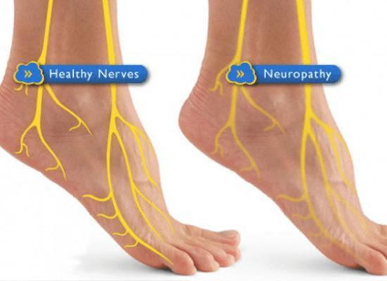 Neuropathy-Treatment-South-Jersey